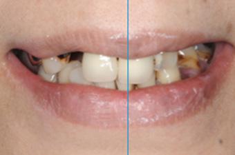 歯並びをバランスよく見せる正中線