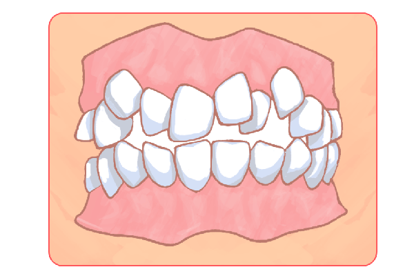お子さんの歯並び矯正にも対応