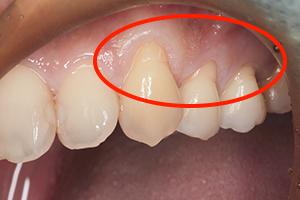 歯肉移植手術で見た目を改善